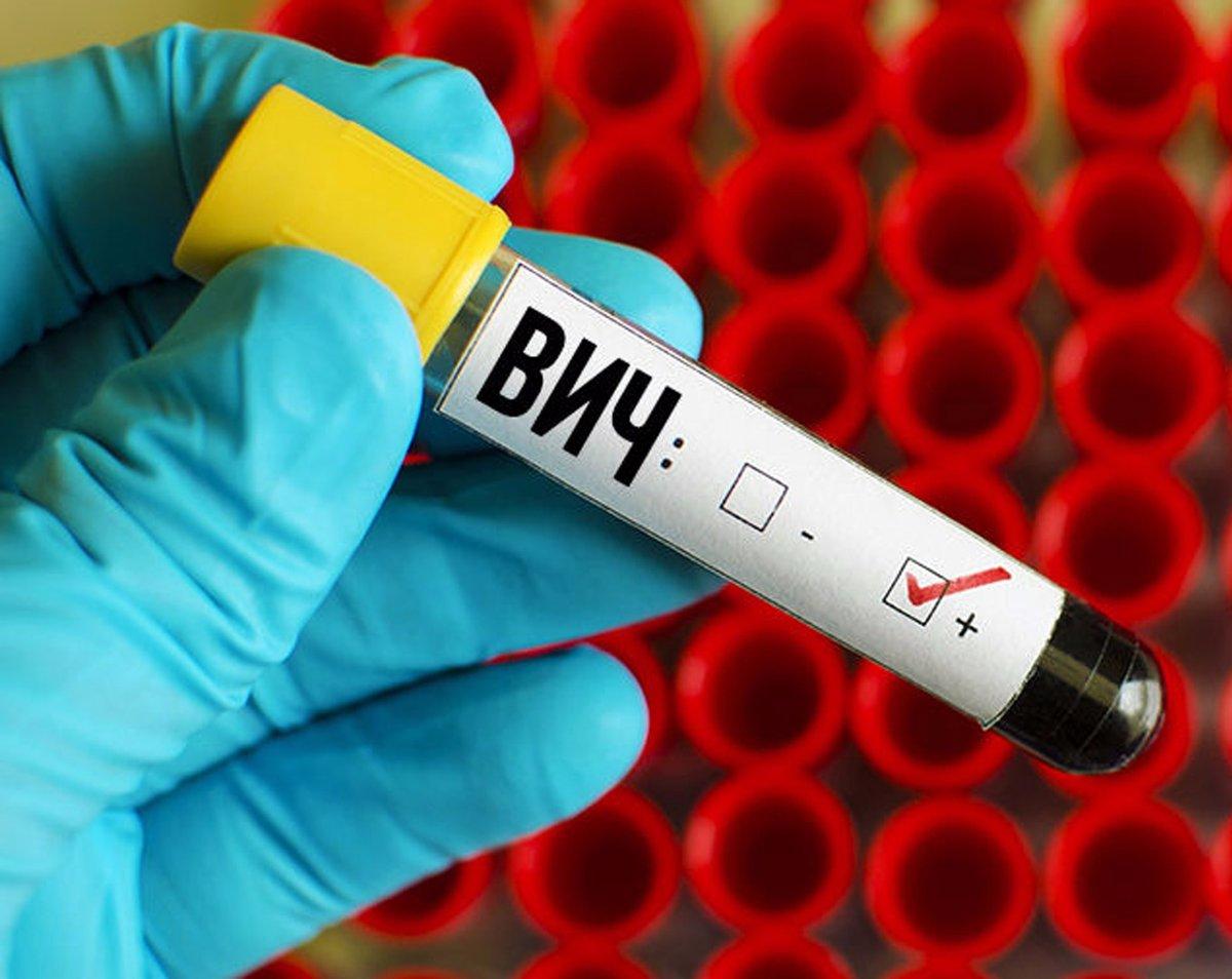 Когда человечество победит ВИЧ?