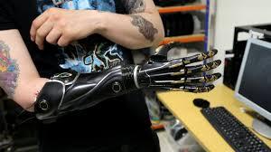 Бионический протез, который может расти вместе с вами