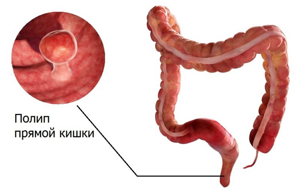 Полипы толстой кишки — причина появления рака. Интересные медицинские факты