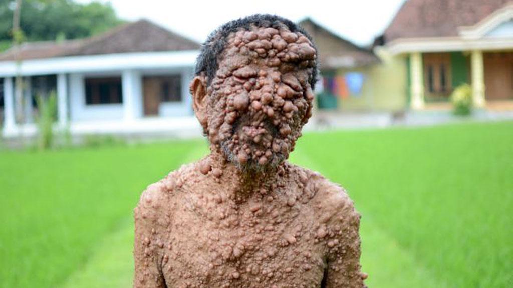 Самые страшные болезни в мире