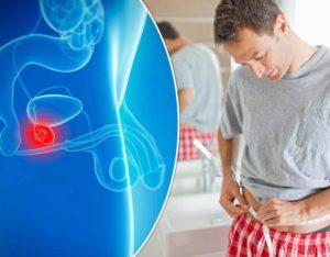 Генетические заболевания и мужское бесплодие
