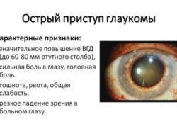 Признаки и лечение глаукомы