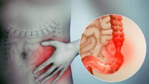 Синдром повышенной проницаемости слизистой