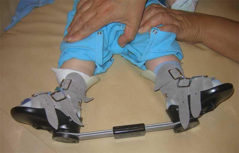 Брейсы для ног – эффективное ортопедическое устройство для коррекции косолапости у детей