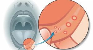 Простуда на губах (герпес)