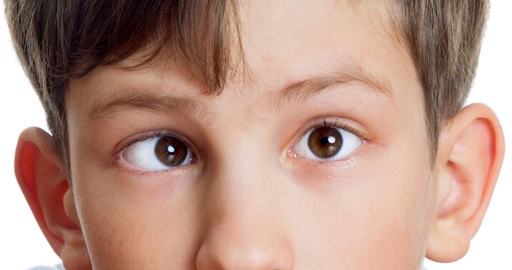 Косоглазых детей становится больше