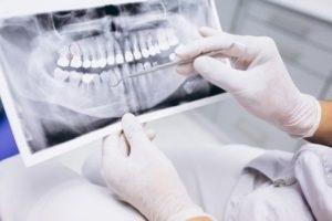 Особенности современной диагностики зубов